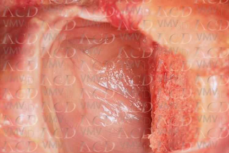 Ligamentos glenohumerales