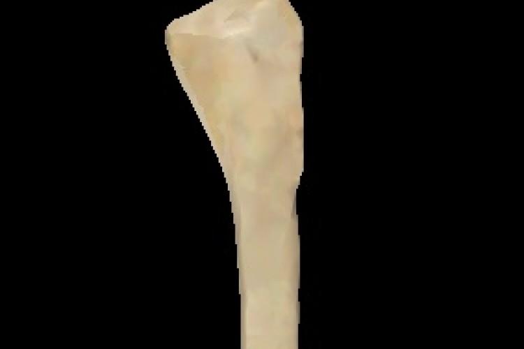 Peroné