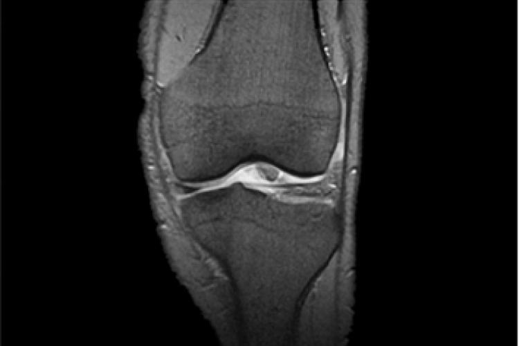 Visión coronal RX rodilla anteroposterior