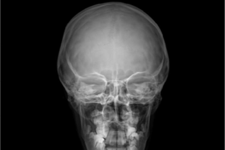 Imagen RX anterior posterior cráneo