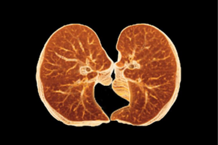 Visión axial VR pulmón y pleuras