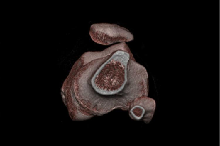 Visión caudal 3D rodilla