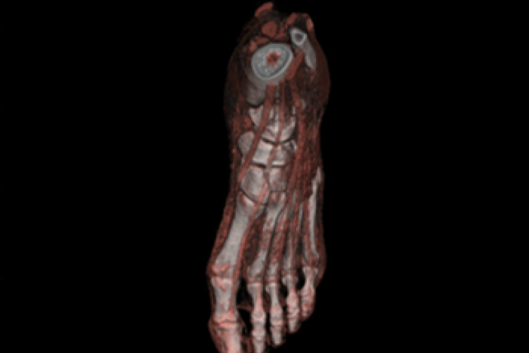 Visión dorsal 3D partes blandas del pie