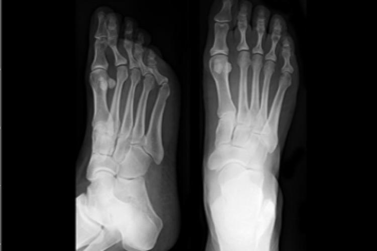 Visión RX dorsoplantar del pie