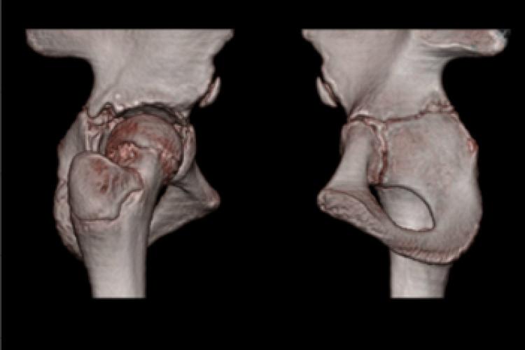 Visión lateral medial cadera 3D