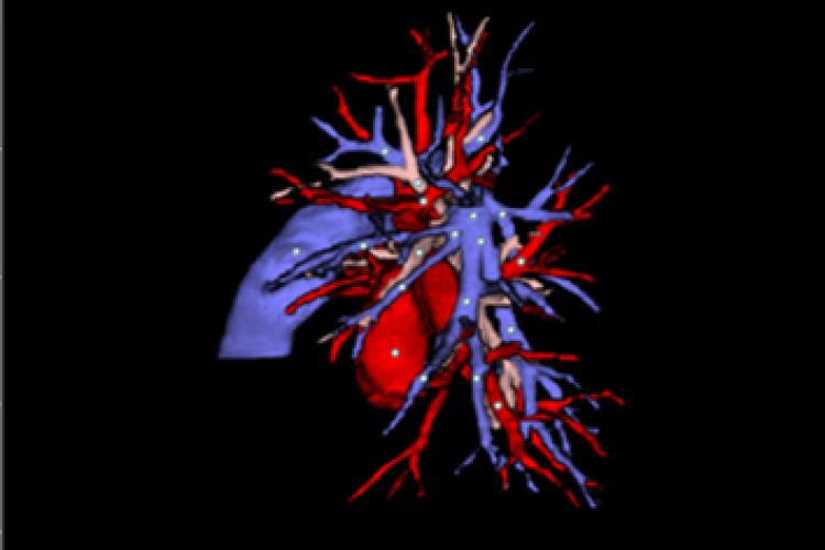 vision lateral izquierda 3D TC vasos pulmonares