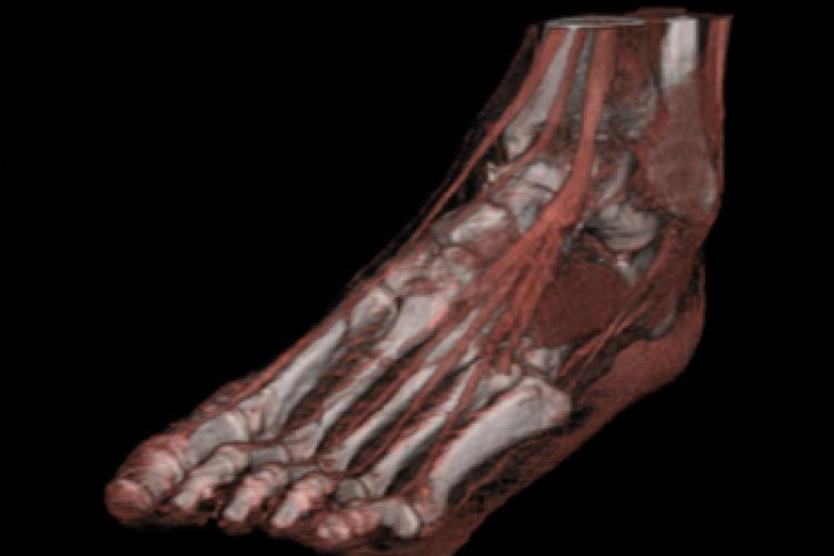 Visión oblícua dorsal 3D tobillo y pie