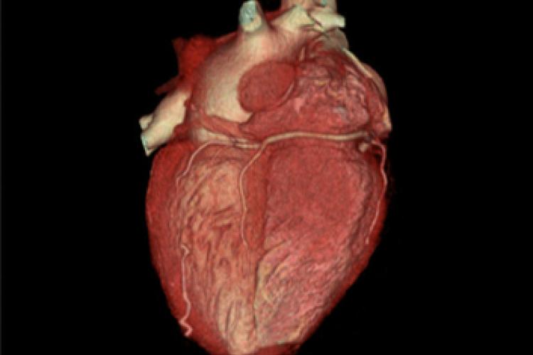 Visión posterior 3D corazón arterias coronarias