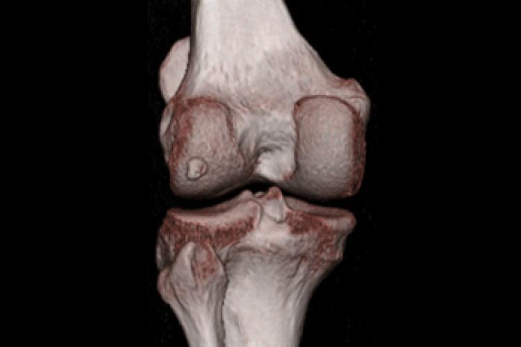 Visión posterior 3D rodilla