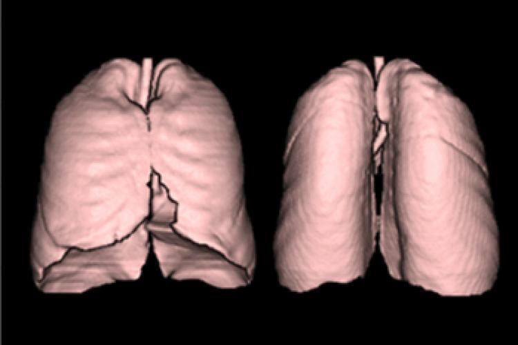 Visión segmentos pulmonares 3D izquierdo y derecho
