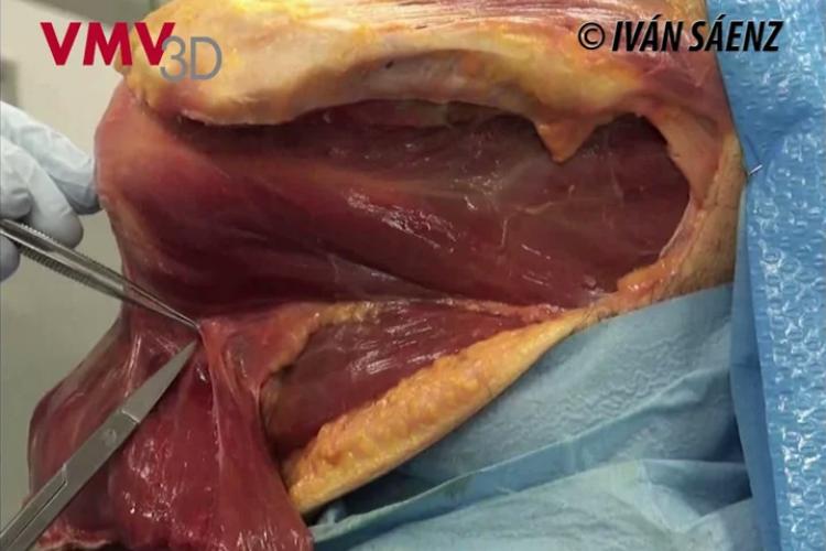Axillary nerve and artery