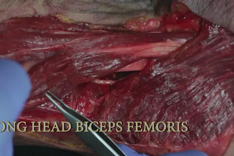 Long head biceps femoris (Hamstrings)