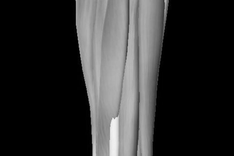 Pierna muscular