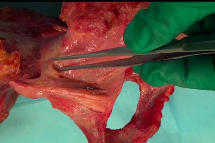 Rectus femoris tendons