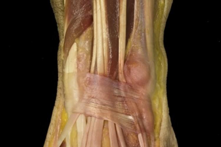 Muscular antebrazo
