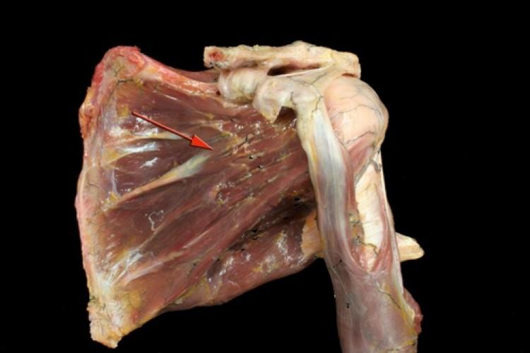 Muscular Hombro