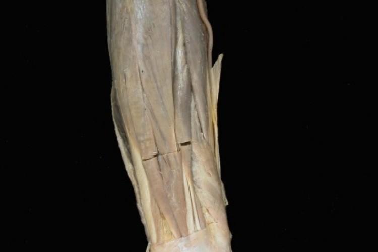 Musculatura brazo