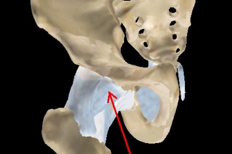 Coxo-femoral