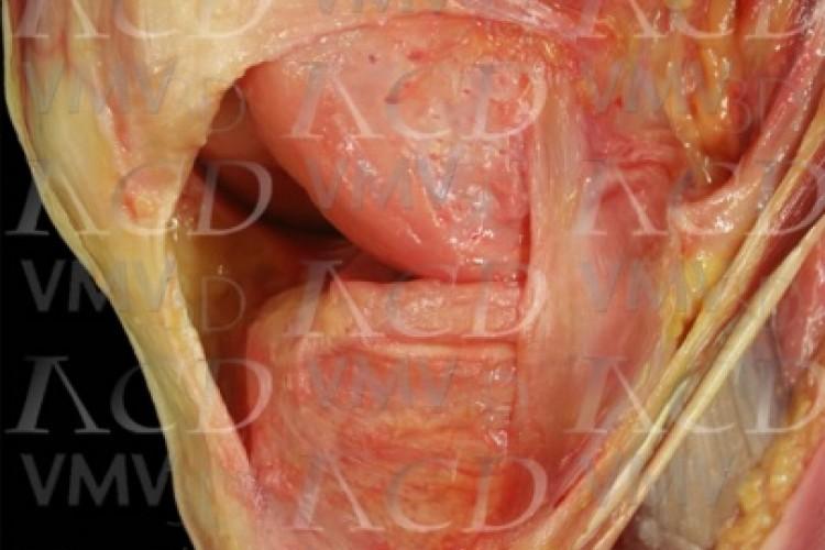 Ligamento patelofemoral medial.