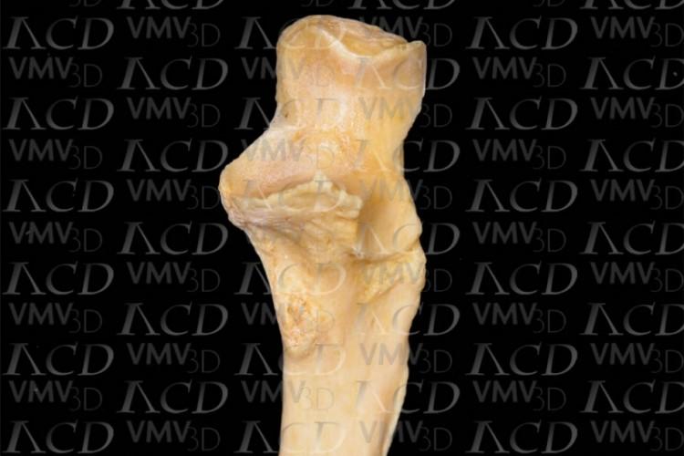 Epífisis proximal osteodegenerativa. Visión anterior.