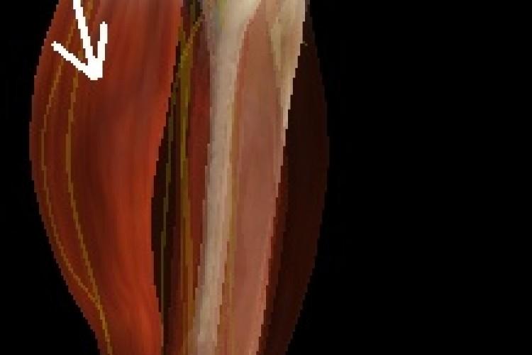 Muscular Pierna