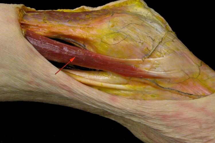 Muscular muslo