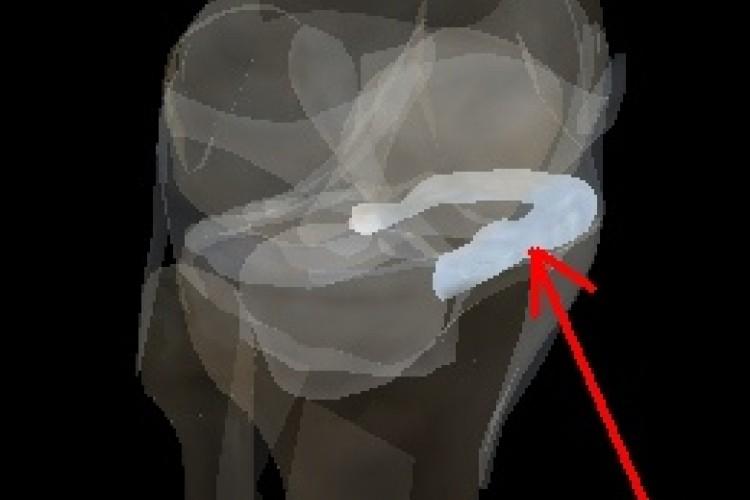 Articulación rodilla