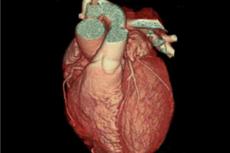 Visión anterior 3D Arterias coranarias
