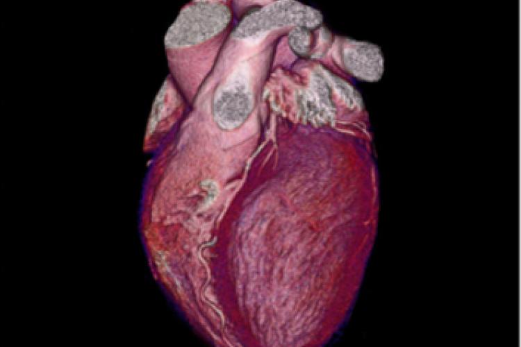Visión 3D anterior izquierda de las arterias coronarias