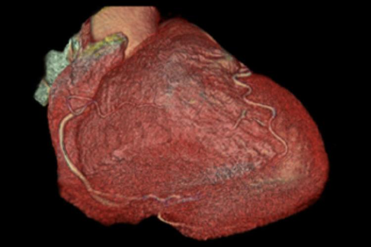 Visión anterior caudal 3D arterias coronarias corazón