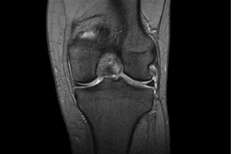 Imagen RX anterior posterior rodilla toma coronal