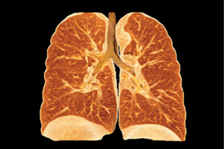 Visión coronal VR pulmón y pleura