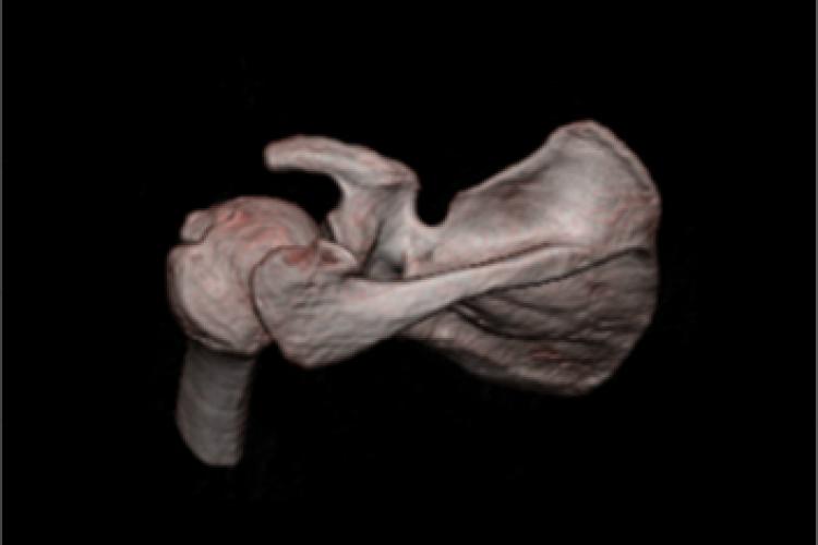 Visión craneal 3D hombro
