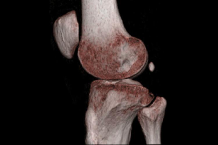 Visión lateral 3D rodilla