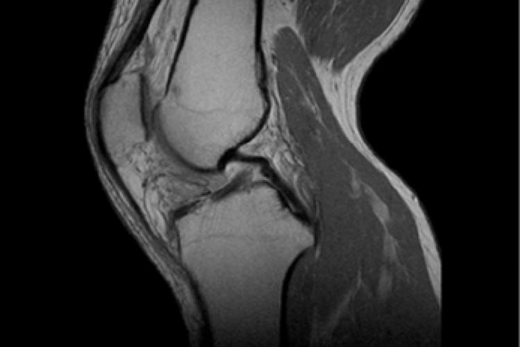 Visión medial lateral RM rodilla