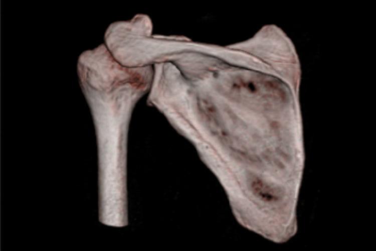 Visión posterior 3D hombro