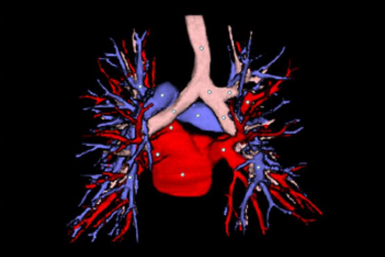 Visión posterior TC 3D vasos pulmonares