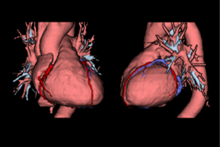 Vision corazón y coronarias 3D