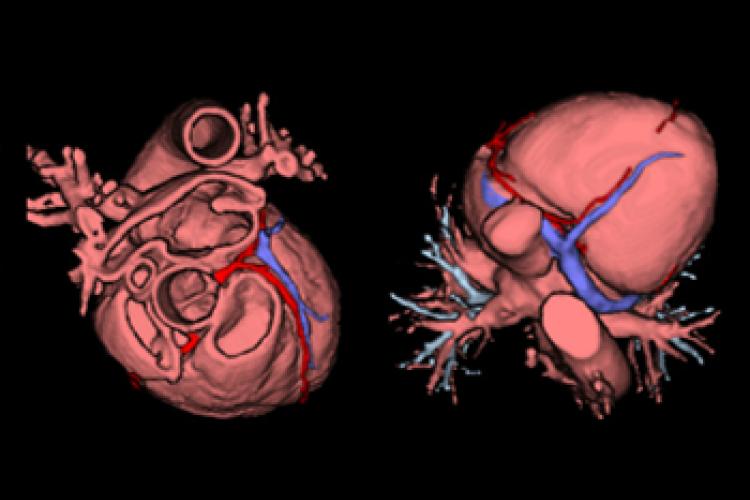 Vision craneal y caudal 3D corazón y coronarias